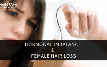 Female hair loss and hormonal imbalance