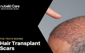 The Truth Behind Hair Transplant Scars and Recovery