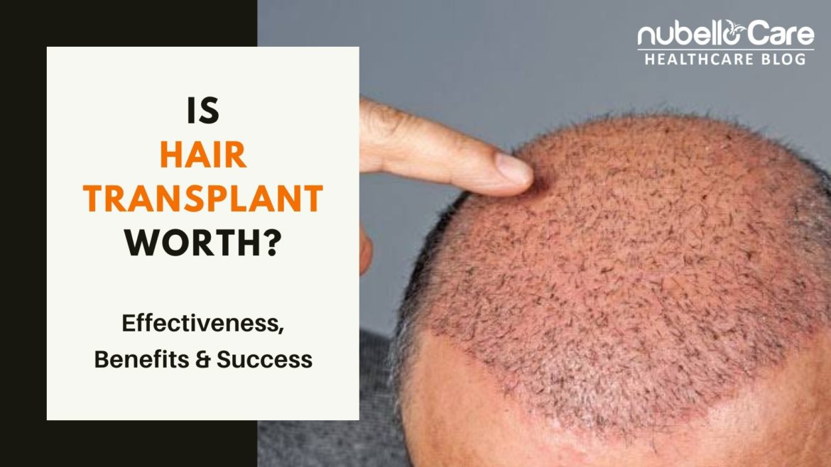 Does Hair Transplant Treatment work?