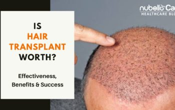 Is Hair Transplant Worth? Effectiveness, Benefits & Success