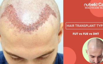 Hair Transplant Types: FUE vs FUT vs DHT