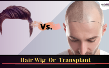 Hair Restoration with Wig or Hair Transplant?