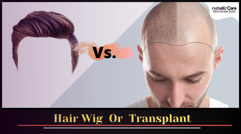 Hair restoration with hair wig or transplant