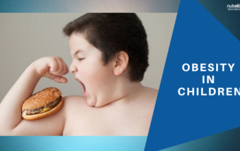 Obesity in Children, Causes and Complications