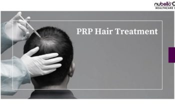 PRP Hair Treatment – Your Plasma for Controlling Hair Loss
