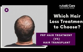 When to go for PRP Hair Treatment Not Hair Transplant?