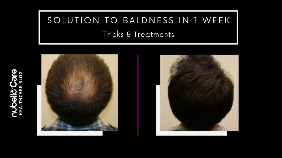 Solution to Baldness in 1 Week