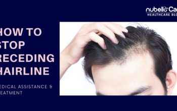 How to Stop Receding Hairline? Medical Assistance
