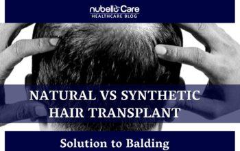 Natural vs Synthetic Hair Transplant