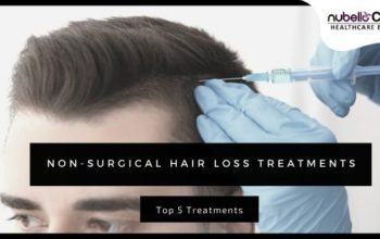 Non-surgical Hair Loss Treatments