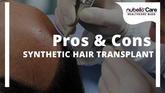 Pros and Cons of Synthetic Hair Transplant
