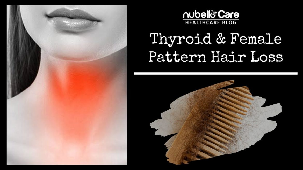 Thyroid & Female Pattern Hair Loss