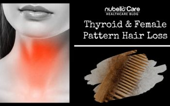 Thyroid and Female Pattern Hair Loss