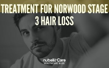 Treatment for Norwood Stage 3 Hair Loss