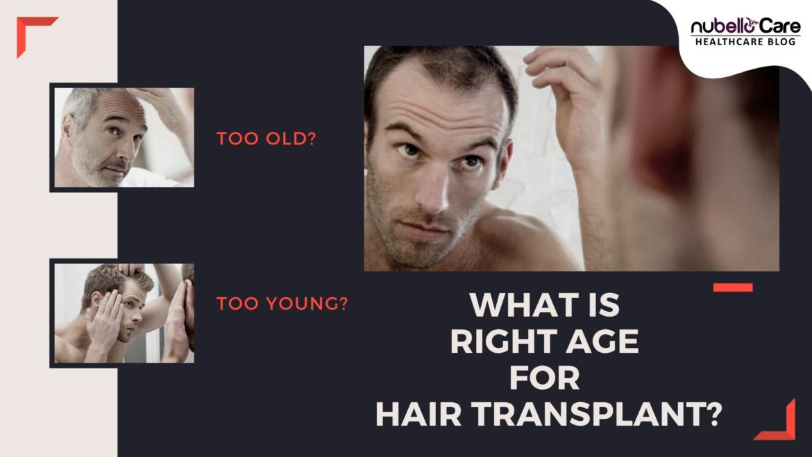What is the right age for hair transplant?
