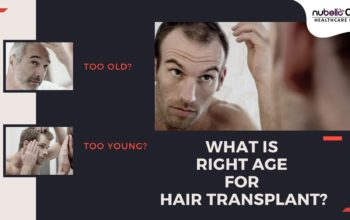 Too Young? Too Old? What is the Age for Hair Transplant?