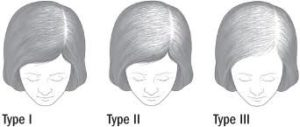 Female pattern baldness stages