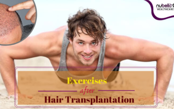 Exercise After Hair Transplantation