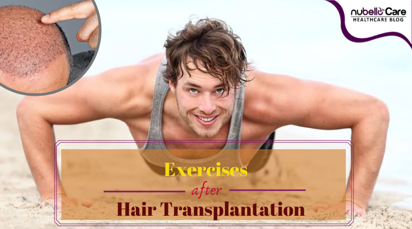 Exercises after hair transplant